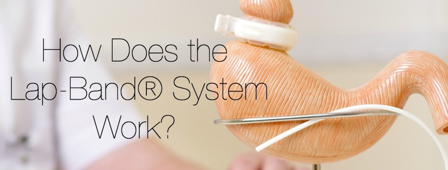 How Does Lap-Band® SystemWork?