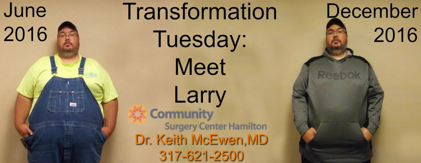 Transformation Tuesday: Larry   Indiana Obesity Center ...