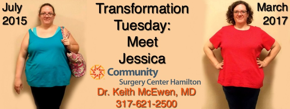 Transformation Tuesday: Jessica – Dr. Keith McEwen ...
