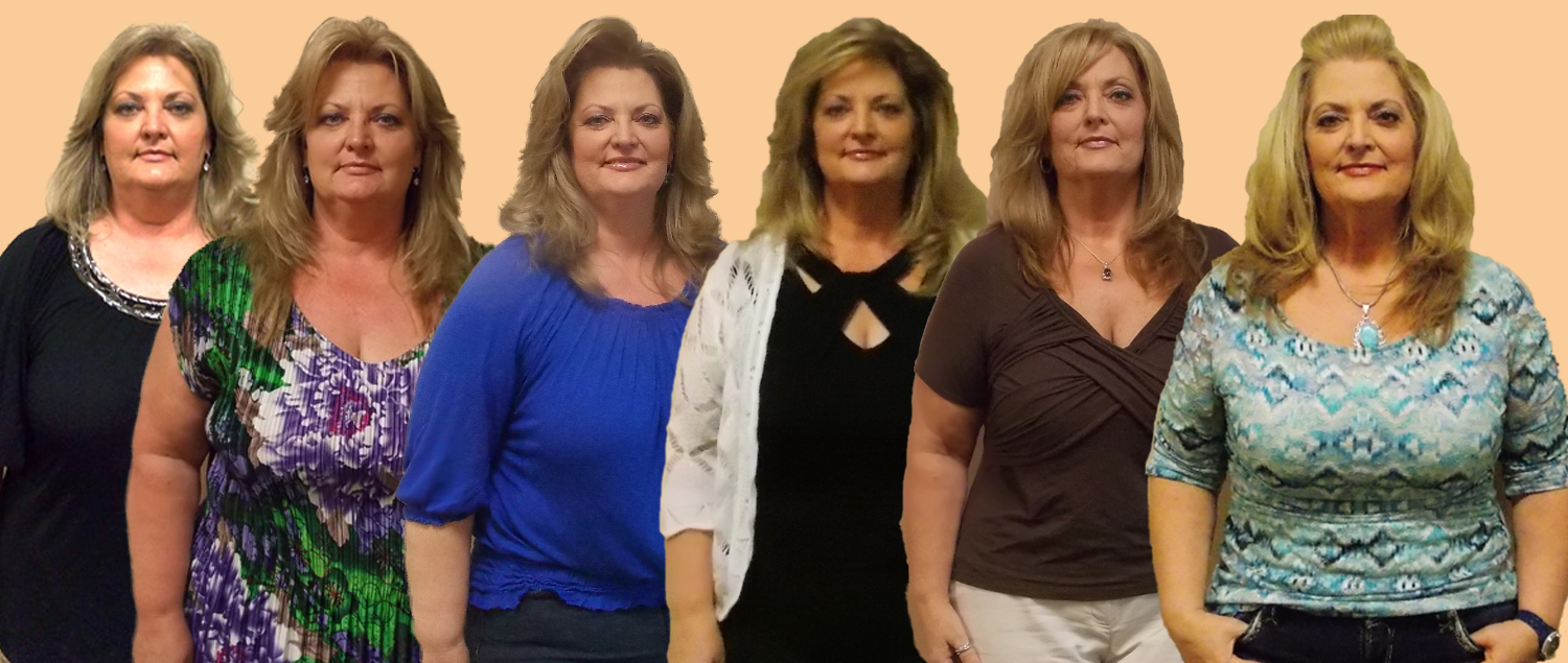 Gwen TT 4 Transformation Tuesday Weight Loss Surgery Dr. Keith McEwen Lab-Band Hamilton Indianapolis Indiana obesity center 317-621-2500 labpandindiana