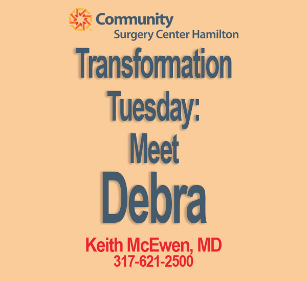 Transformation Tuesday: Debra