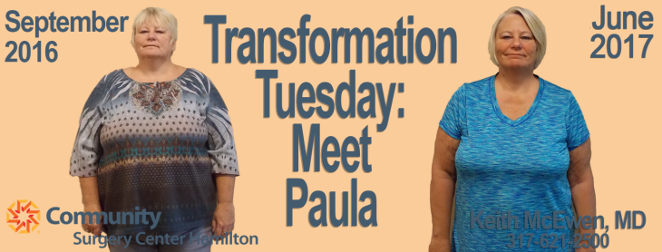 Paula TT 1 Transformation Tuesday Weight Loss Surgery Dr. Keith McEwen Lab-Band Hamilton Indianapolis Indiana obesity center 317-621-2500 labpandindiana
