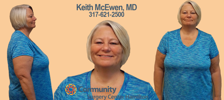 Paula TT 3 Transformation Tuesday Weight Loss Surgery Dr. Keith McEwen Lab-Band Hamilton Indianapolis Indiana obesity center 317-621-2500 labpandindiana