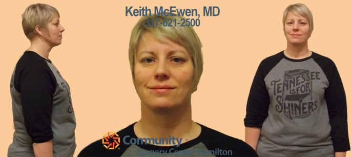 Mary TT 3 Transformation Tuesday Weight Loss Surgery Dr. Keith McEwen Lab-Band Hamilton Indianapolis Indiana obesity center 317-621-2500 labpandindiana