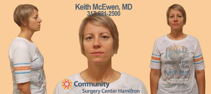 Dr. Keith McEwen MD Indianapolis Indiana Carmel Nobelsville Anderson Hamilton Community Surgery Center Hamilton Community Bariatrics Hamilton 46060 46011 46062 46033 46037 46074 46032 46220 46226 46055 46064 46030 46203 46239 46259 46163 46142 46143 lap-band system lap band system cost lap band system reviews lap band system patient education seminars lap band system access port lap band system pedometer lap band public system lap band ap system mri safety bioenterics lap band system lap-band ap system small lap band system lap-band system allergan lap band ap system large lap band gastric banding system franciscan health system lap band the new lap band system lap band through public system lap band surgery public system lap band system surgery the lap band system lap-band vg system what is lap band systemlap-band procedure lap-band removal lap-band system lap-band cost lap-band weight loss surgery lap-band complications lap-band diet lap-band® lap-band reviews lap-band alternative lap-band lap-band surgery lap-band adjustable gastric banding system lap band and pregnancy lap band australia lap band after gastric bypass lap band az lap band adjustment lap band and alcohol lap band and acid reflux lap band austin a lap band surgery a lap band removing a lap band can lapband be removed is a lap band permanent is a lap band safe is a lap band covered by insurance is a lap band reversible how a lap band works does a lap band work lap band before and after lap band before and after pictures lap band blog lap band before and after pics lap band brisbane lap band bmi lap band birmingham al lap band blockage lap band before and after stories lap band bariatric surgery b-2240 lap band lap band cost without insurance lap band covered by insurance lap band criteria lap band complications years later lap band canada lap band chicago lap band calgary lap band cons realize c lap band clap clap band clap clap bandcamp c section with lap band c-section and lap band surgery c secti