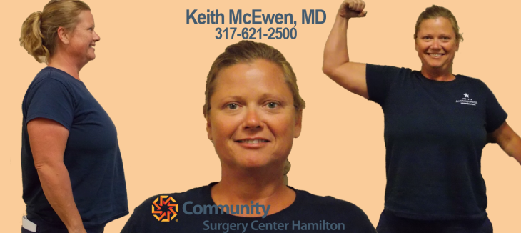 Wendi TT 3 Transformation Tuesday Weight Loss Surgery Dr. Keith McEwen Lab-Band Hamilton Indianapolis Indiana obesity center 317-621-2500 labpandindiana
