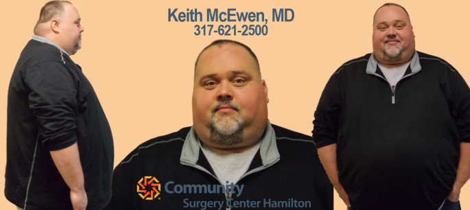 Rich TT Before Transformation Tuesday Weight Loss Surgery Dr. Keith McEwen Lab-Band Hamilton Indianapolis Indiana obesity center 317-621-2500 labpandindiana