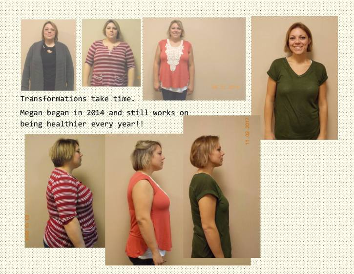 Lap Band Weight Loss